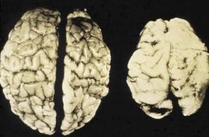 Фото воздействия алкоголя на мозг подросткового организма, yaltanews.com